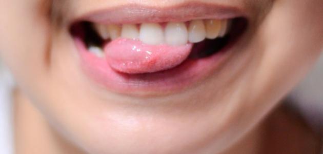 ما علاج الفطريات في الفم