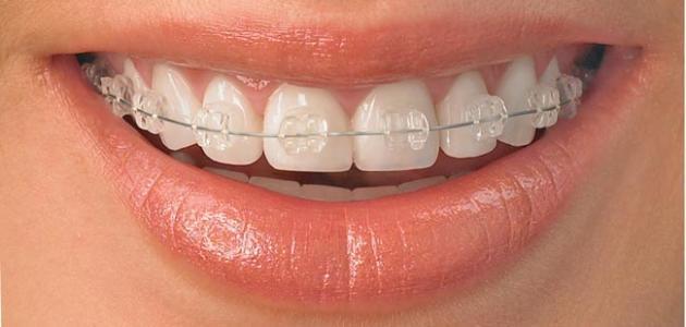 أضرار تقويم الأسنان