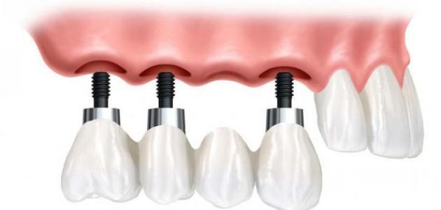 كيف تتم عملية زراعة الأسنان
