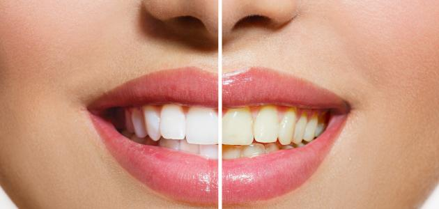 تبيض الاسنان باستخدام الطبيعة