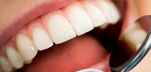 كيف أزيل صفار الأسنان