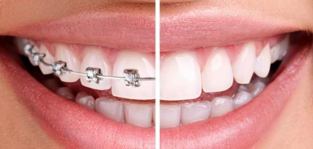 إزالة تقويم الأسنان