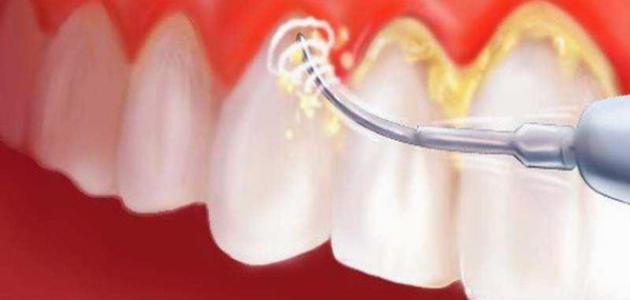 إزالة جير الأسنان بطريقة طبيعية