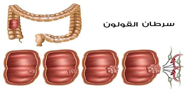 سرطان القولون هل هو مميت موقع مصادر