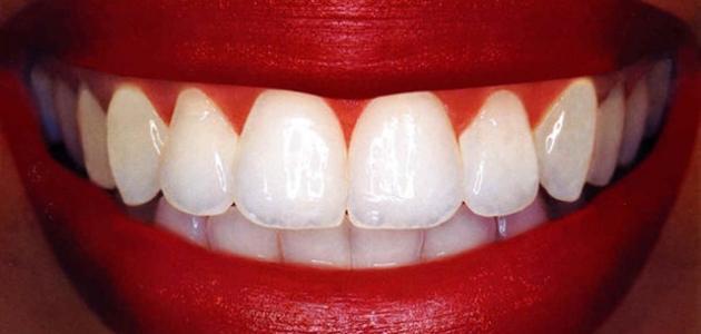 طريقة سهلة وسريعة لتبييض الأسنان